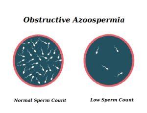 Obstructive Azoospermia