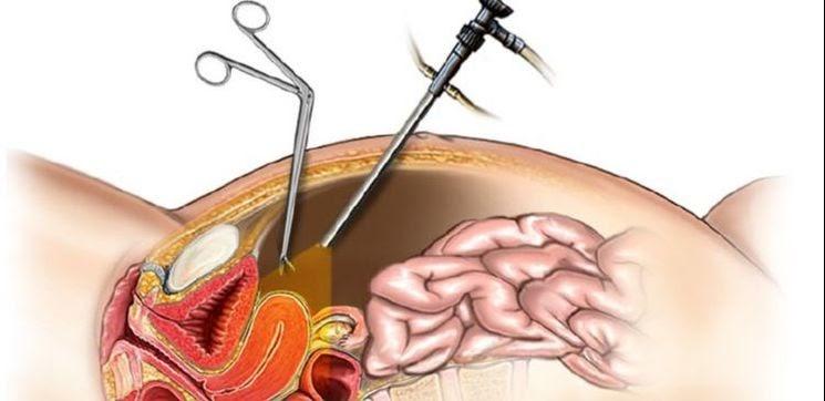 laparoscopy hysteroscopy